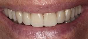 Cosmetic dentistry (full mouth rehabilitation)