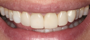 Cosmetic dentistry (discolored and irregular teeth)