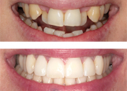 Aesthetic dentistry (irregular teeth and periodontitis)