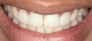 Aesthetic dentistry (finishing after dental referral)