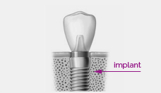 Illustration - Implantology