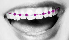 Illustration - Orthodontics